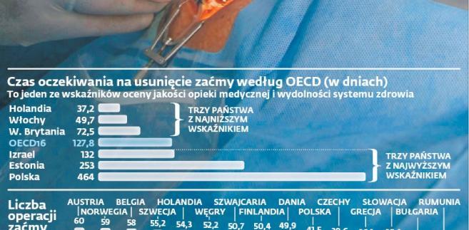Czas oczekiwania na usunięcie zaćmy według OECD